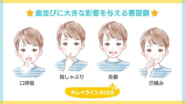 歯並びに影響を与える悪習癖(口呼吸、指しゃぶり、舌癖、爪噛み)